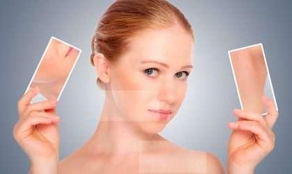 5 Mascarillas para combatir el acné
