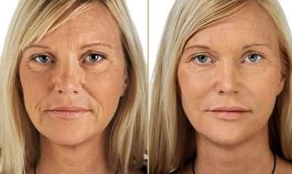 ¿Quieres despedirte de las arrugas? Prueba esta crema natural