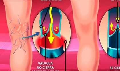 5 trucos para prevenir las várices