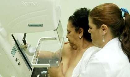 ¿Cuando debo realizarme una mamografía?