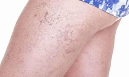 Ulceras varicosas el problema que mas afecta a las mujeres