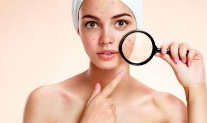 ¿ Porque se produce el acné?